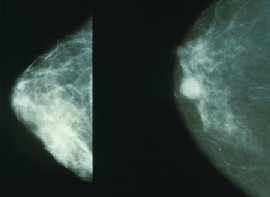 Mammograms showing a normal breast (left) and a breast cancer (right).